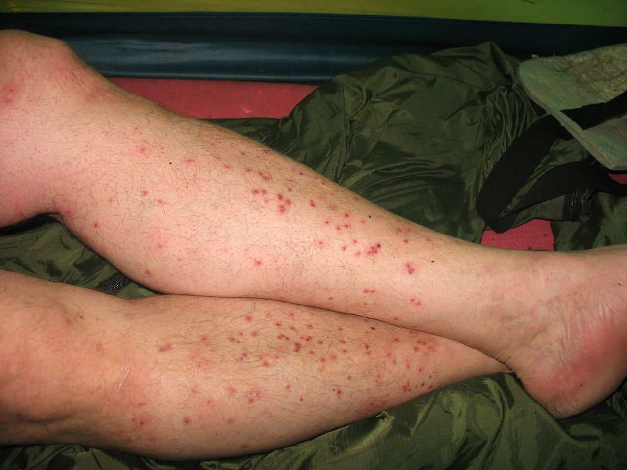 паразиты на коже человека